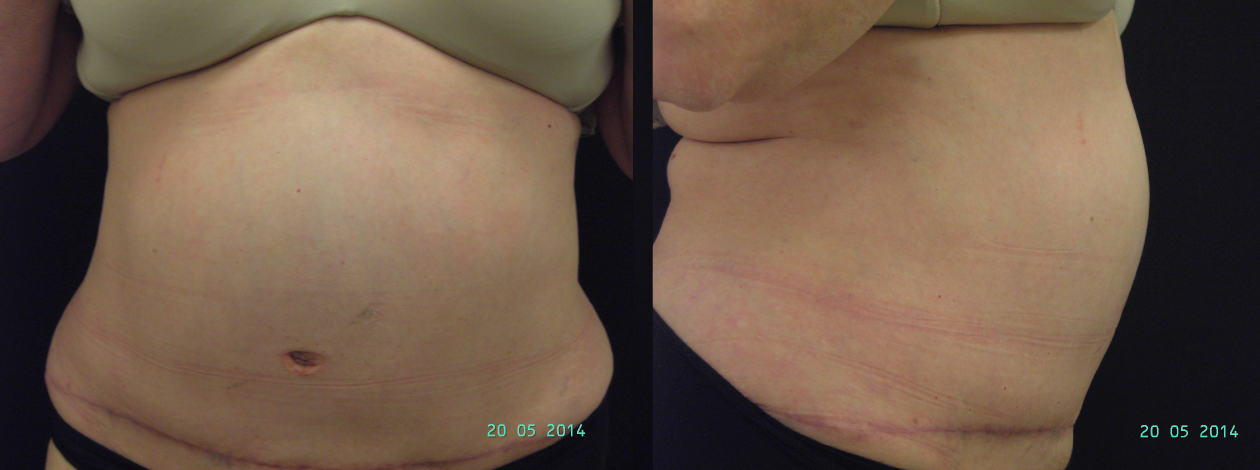 abdominoplastia-post