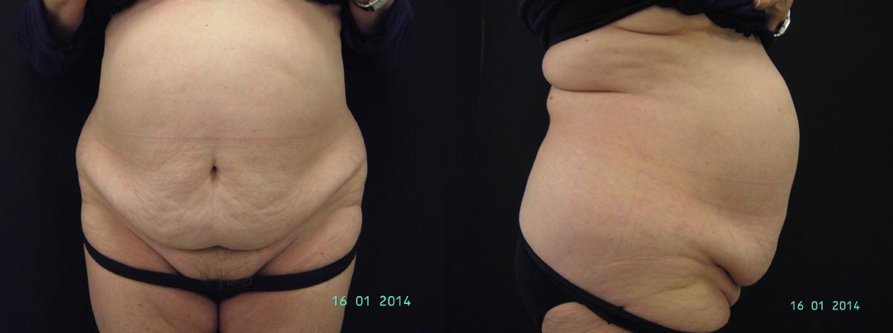 abdominoplastia-pre