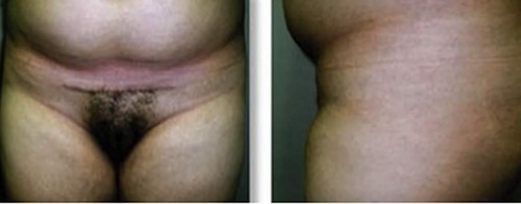 Cirugía pubiana