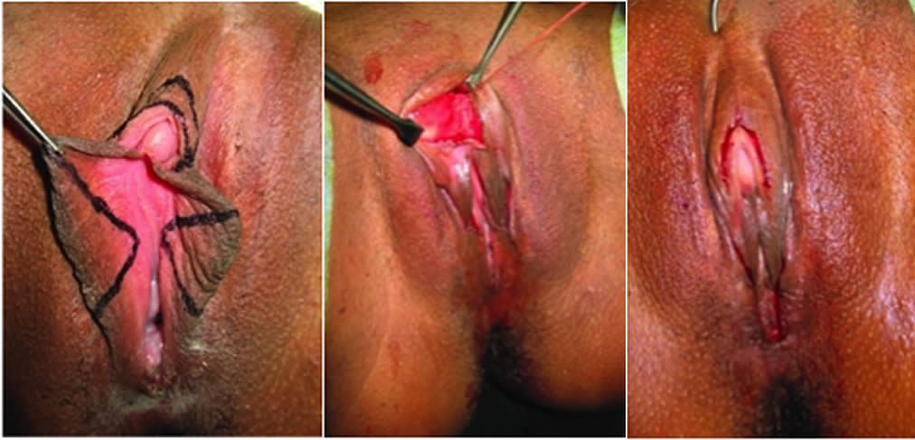 Clitoroplastia