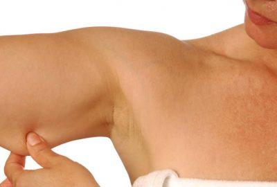 Combatir la flacidez de brazos