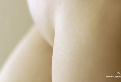 Cirugía intima femenina ginecoestetica