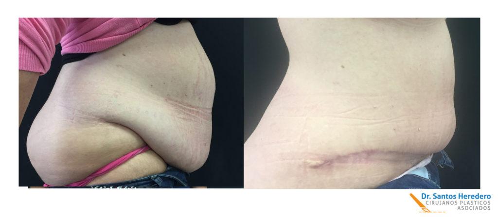 Cirugía postbariátrica antes y después